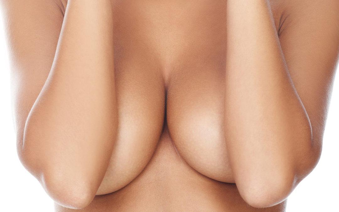 Cirugías del seno